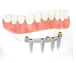 Bridge complet sur implants dentaires All-on-4